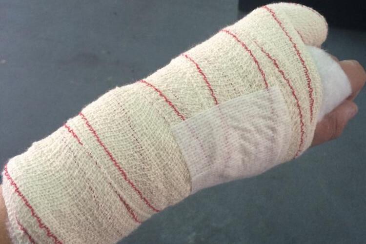 Finger Angebrochen